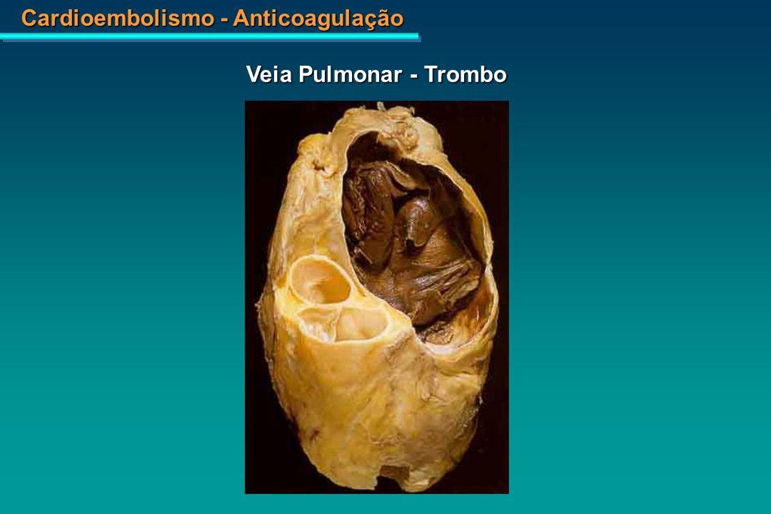 Veia Pulmonar - Trombo