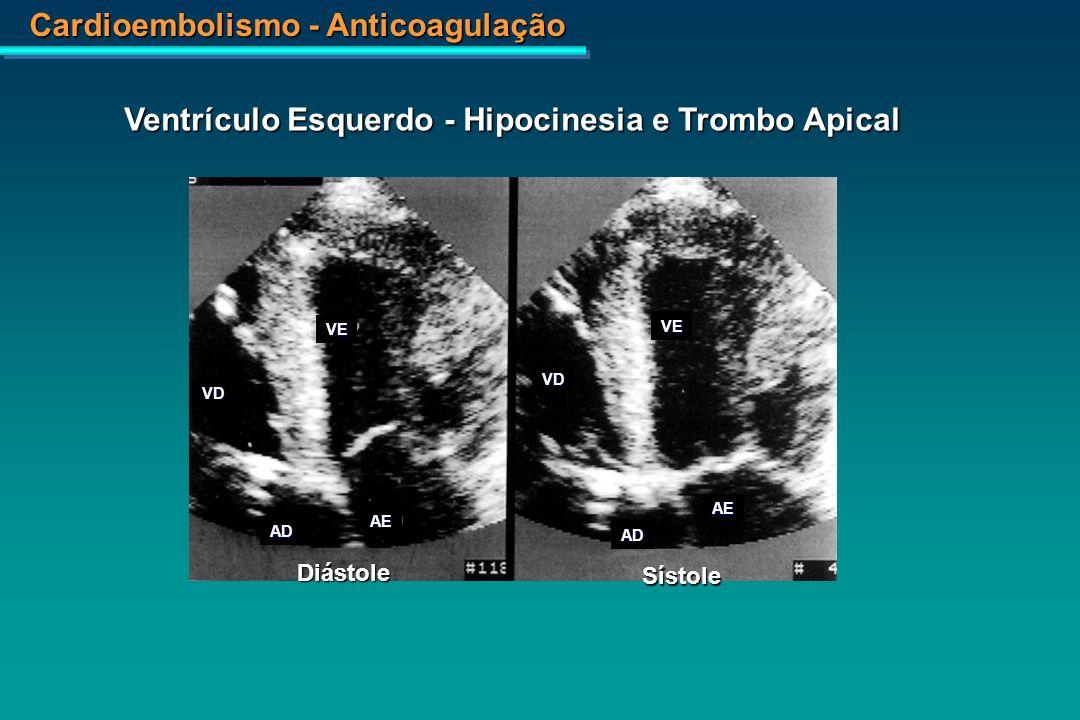 Ventrículo Esquerdo - Hipocinesia e Trombo Apical