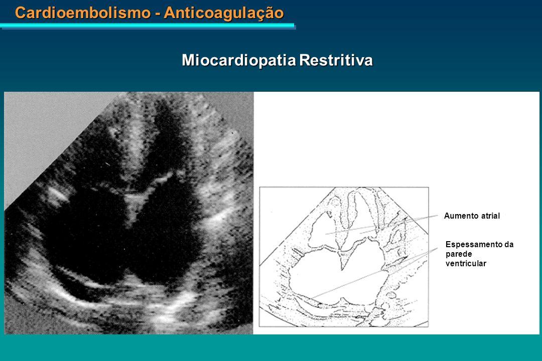 Miocardiopatia Restritiva