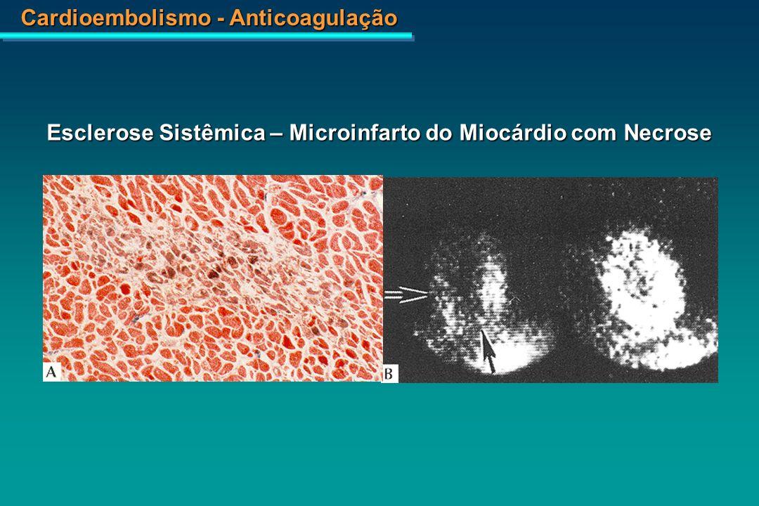 Esclerose Sistêmica – Microinfarto do Miocárdio com Necrose