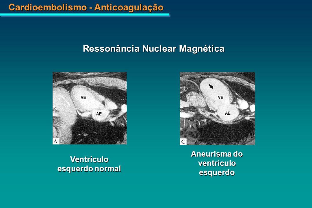 Ressonância Nuclear Magnética