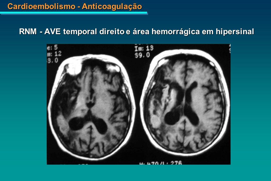 RNM - AVE temporal direito e área hemorrágica em hipersinal