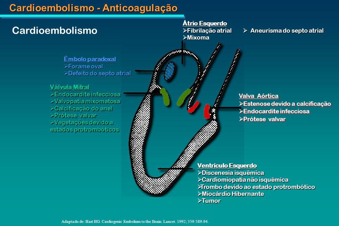 Cardioembolismo Átrio Esquerdo