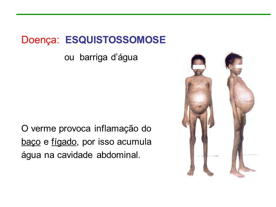 Doença: ESQUISTOSSOMOSE