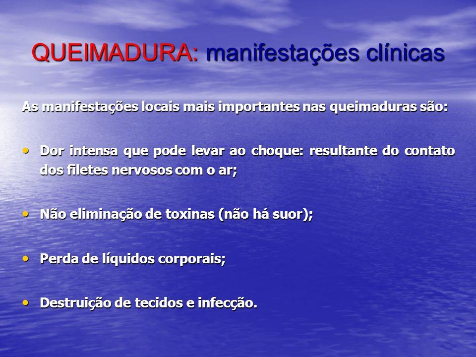 QUEIMADURA: manifestações clínicas