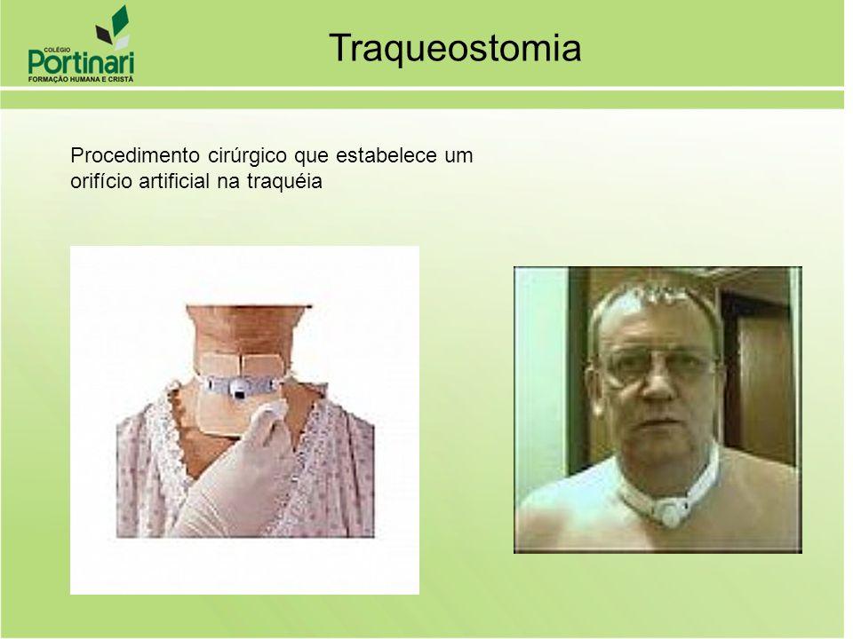Traqueostomia Procedimento cirúrgico que estabelece um