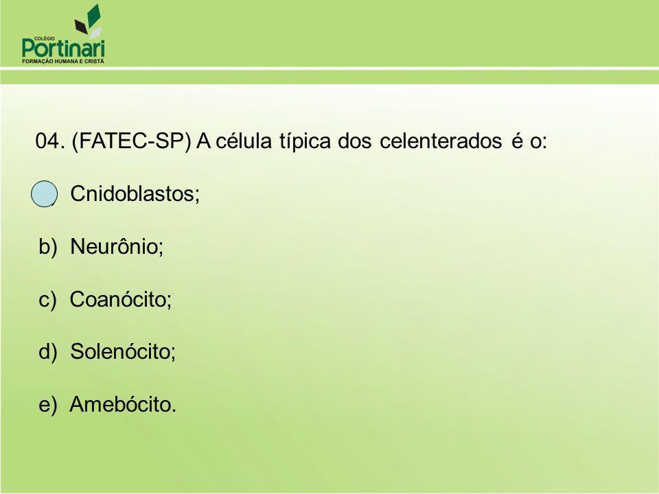 a) Cnidoblastos; b) Neurônio; c) Coanócito; d) Solenócito;