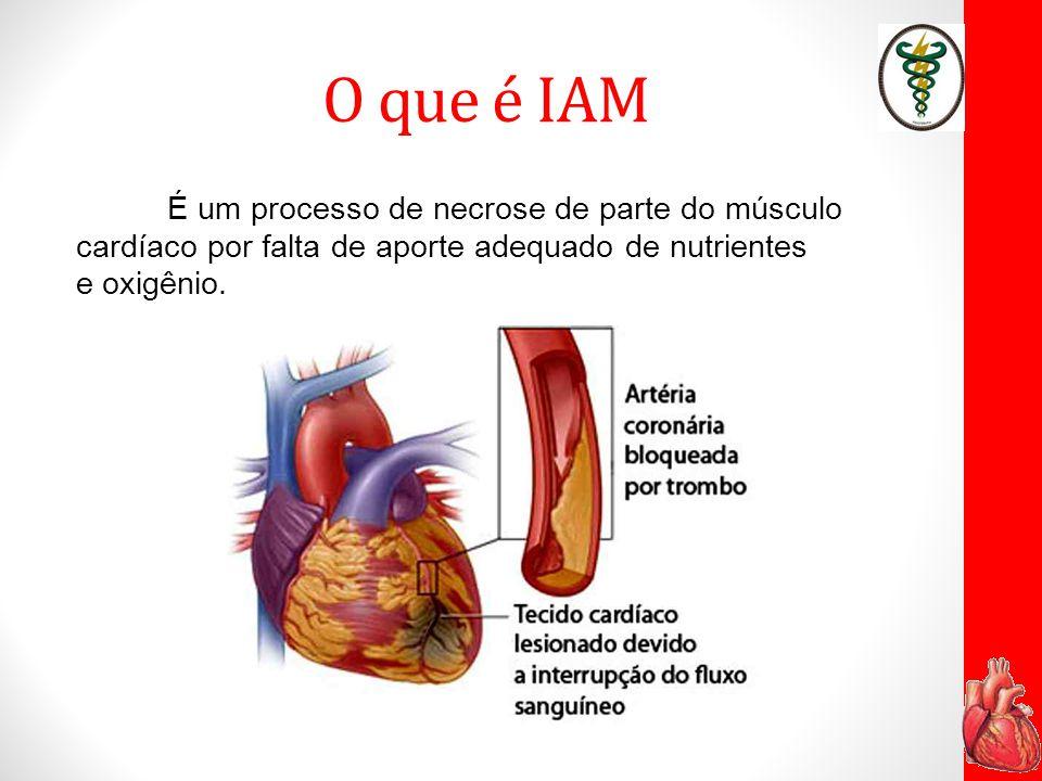 O que é IAM É um processo de necrose de parte do músculo cardíaco por falta de aporte adequado de nutrientes e oxigênio.