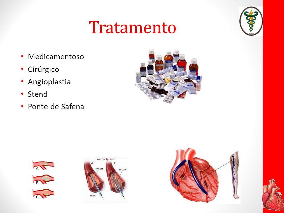 Tratamento Medicamentoso Cirúrgico Angioplastia Stend Ponte de Safena