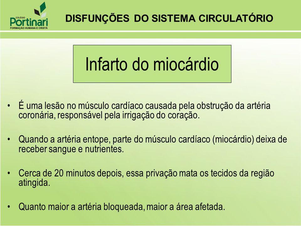 Infarto do miocárdio DISFUNÇÕES DO SISTEMA CIRCULATÓRIO