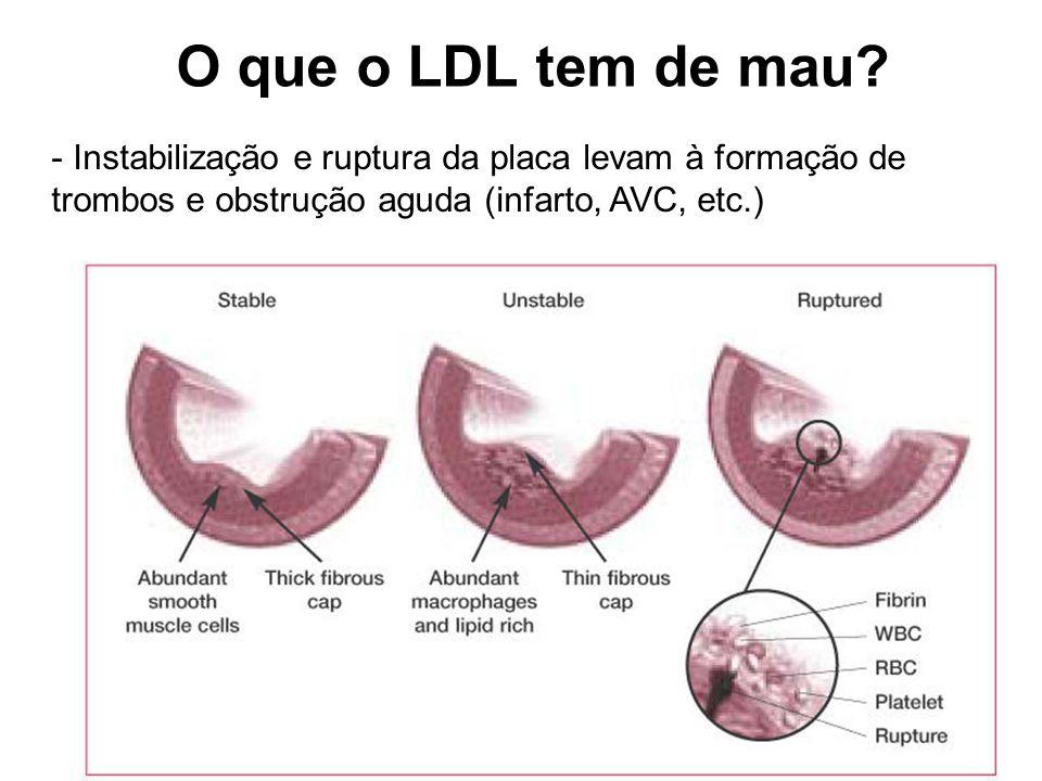 O que o LDL tem de mau.