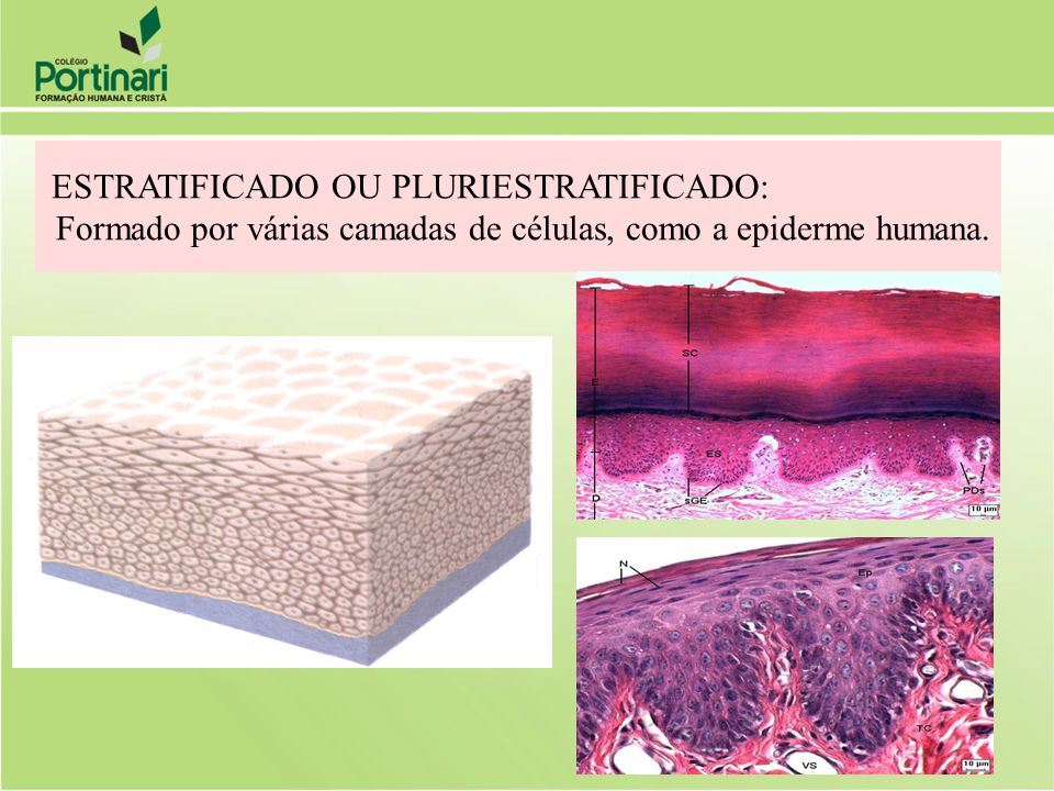 ESTRATIFICADO OU PLURIESTRATIFICADO:
