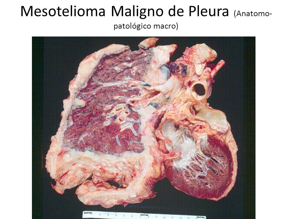Mesotelioma Maligno de Pleura (Anatomo-patológico macro)