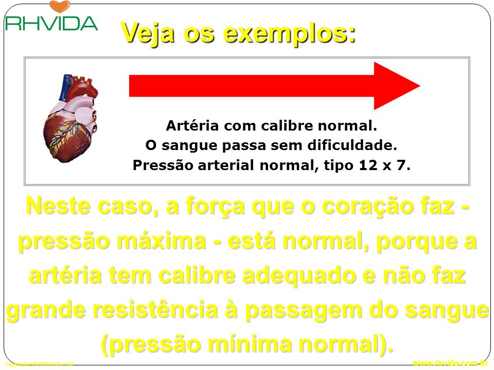 Veja os exemplos: Artéria com calibre normal. O sangue passa sem dificuldade. Pressão arterial normal, tipo 12 x 7.