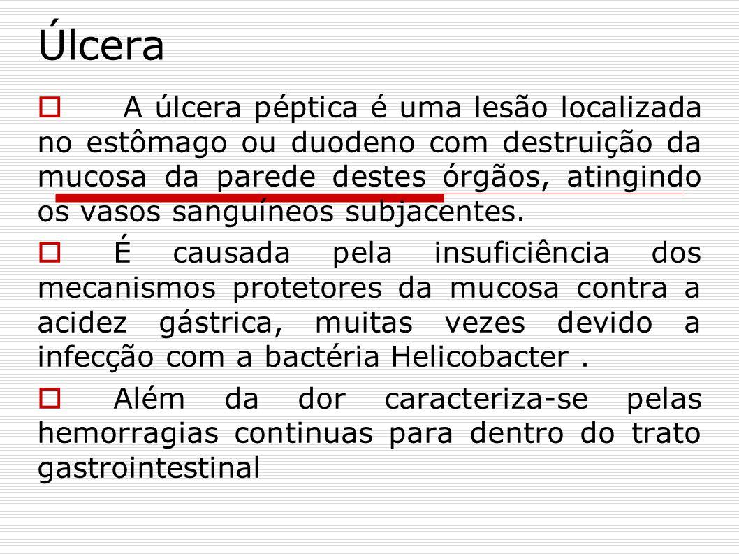 Úlcera