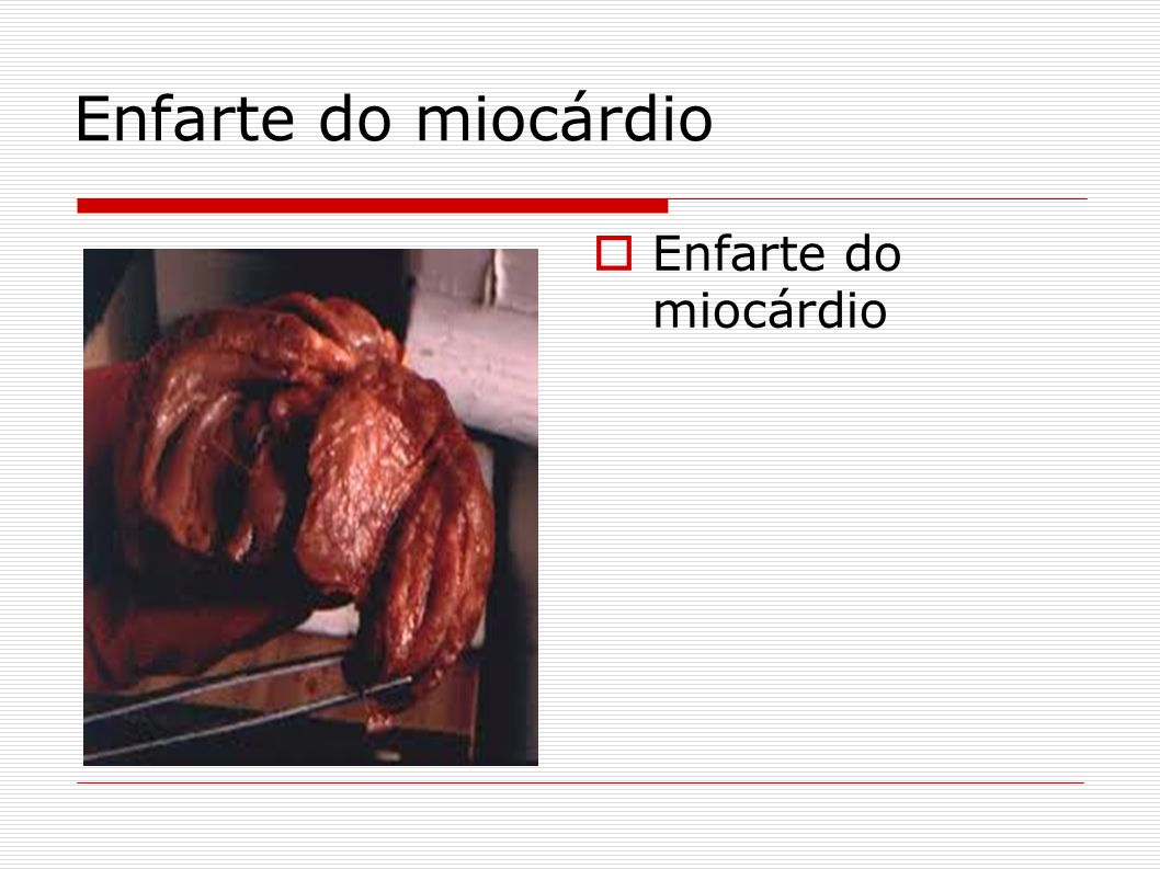 Enfarte do miocárdio Enfarte do miocárdio