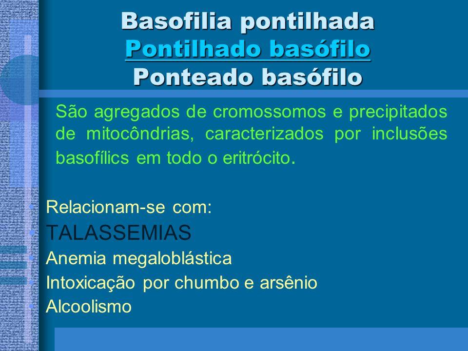 Basofilia pontilhada Pontilhado basófilo Ponteado basófilo