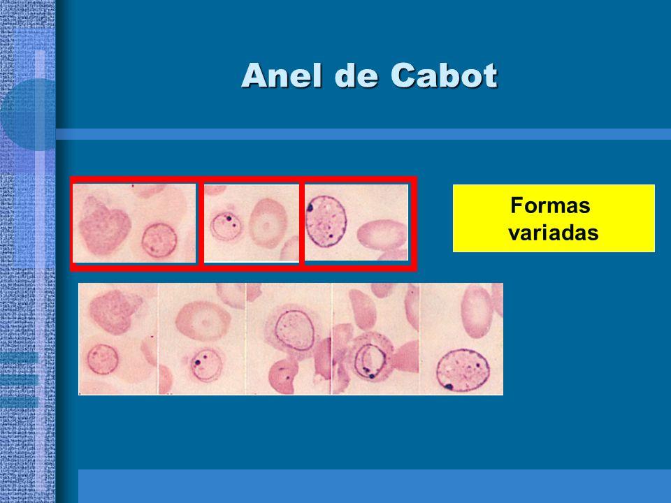 Anel de Cabot Formas variadas