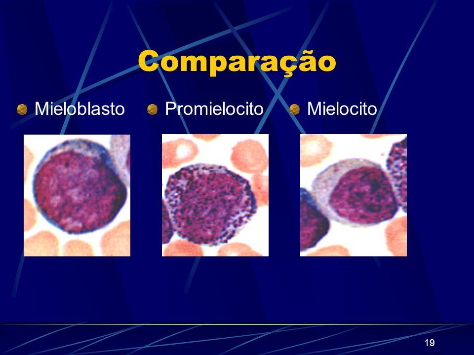 Comparação Mieloblasto Promielocito Mielocito