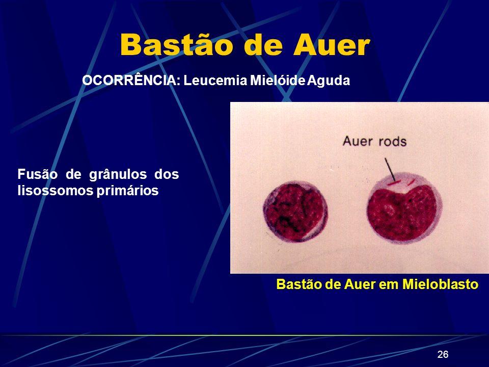 OCORRÊNCIA: Leucemia Mielóide Aguda Bastão de Auer em Mieloblasto