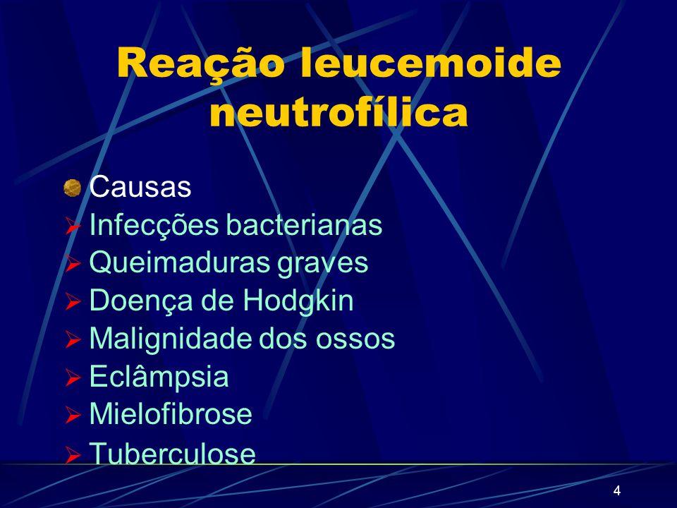 Reação leucemoide neutrofílica