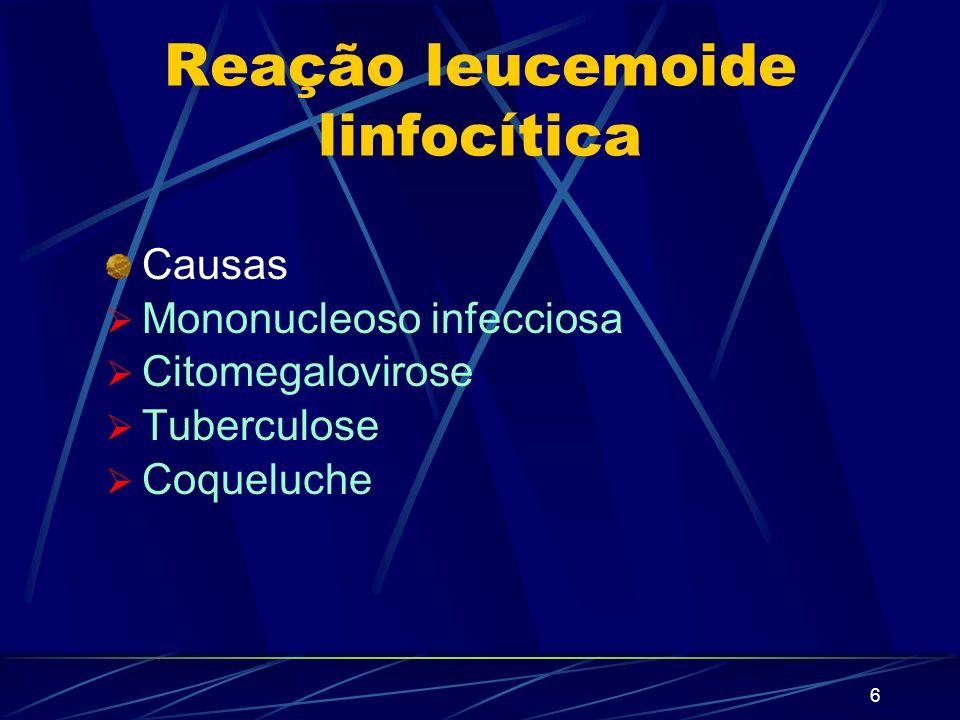 Reação leucemoide linfocítica
