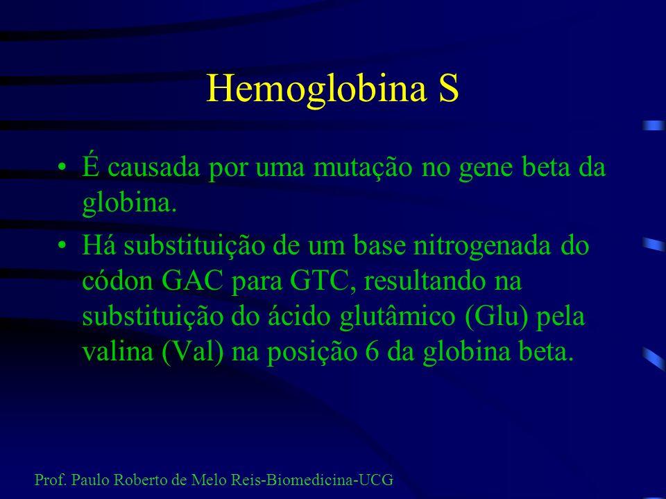 Hemoglobina S É causada por uma mutação no gene beta da globina.