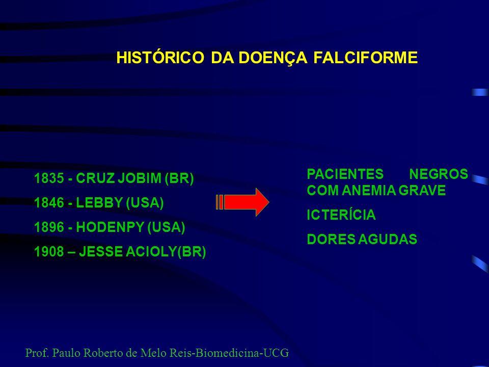 HISTÓRICO DA DOENÇA FALCIFORME