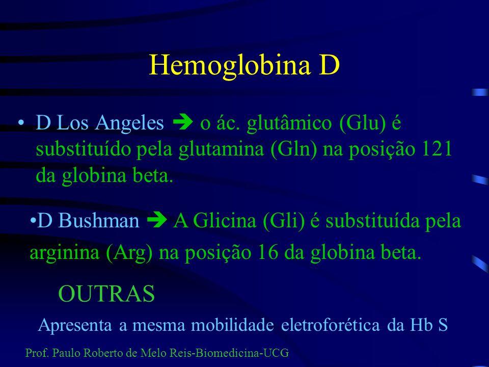 Hemoglobina D D Los Angeles  o ác. glutâmico (Glu) é substituído pela glutamina (Gln) na posição 121 da globina beta.