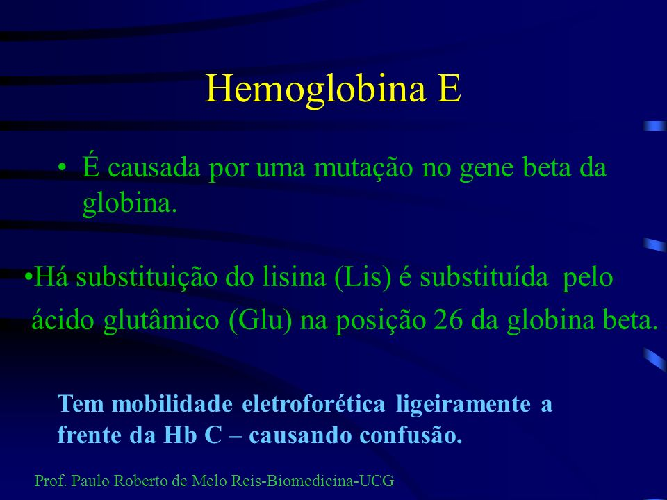 Hemoglobina E É causada por uma mutação no gene beta da globina.