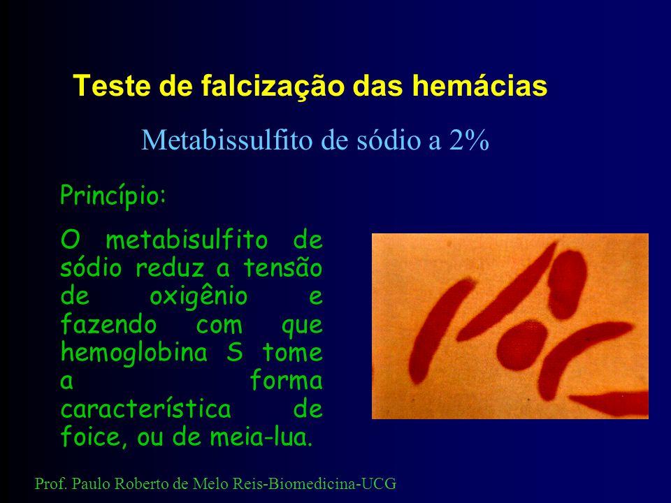 Teste de falcização das hemácias