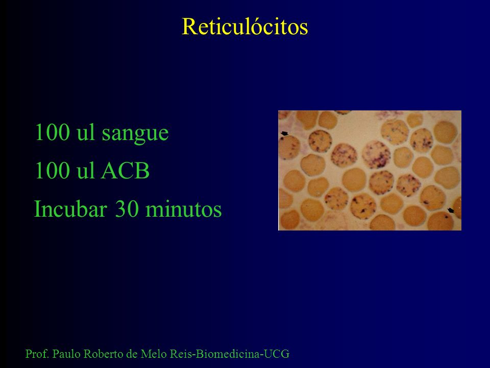 Reticulócitos 100 ul sangue 100 ul ACB Incubar 30 minutos