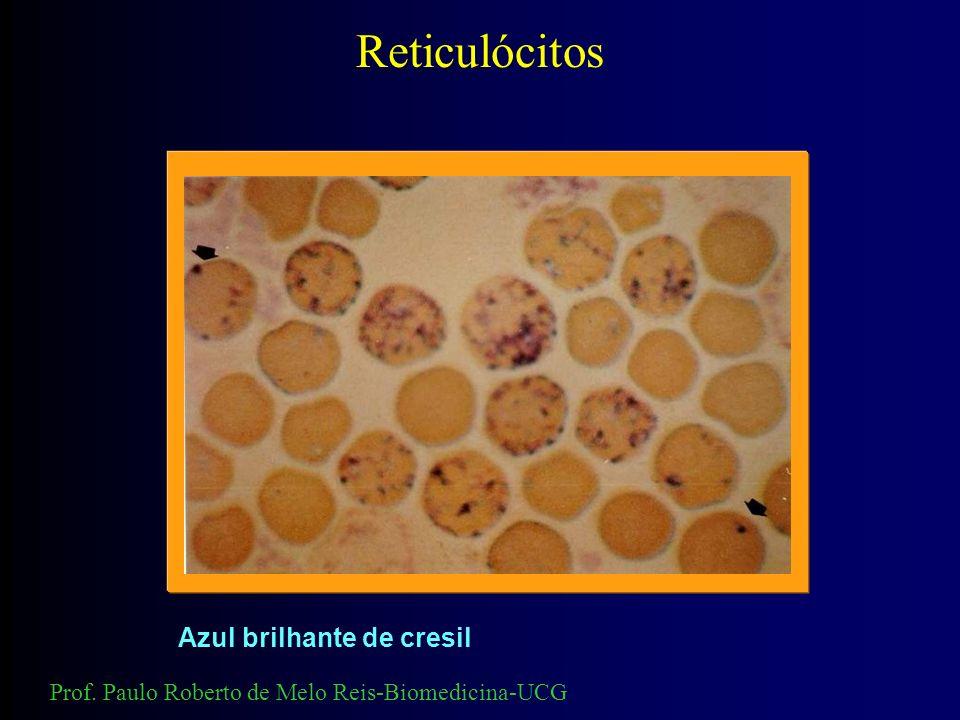 Reticulócitos Azul brilhante de cresil