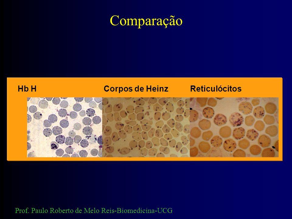 Comparação Hb H Corpos de Heinz Reticulócitos