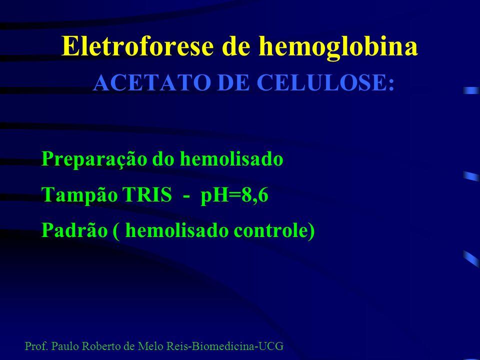 Eletroforese de hemoglobina ACETATO DE CELULOSE:
