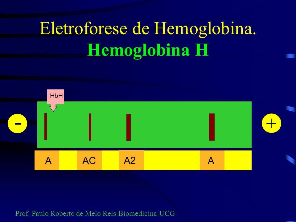 Eletroforese de Hemoglobina. Hemoglobina H