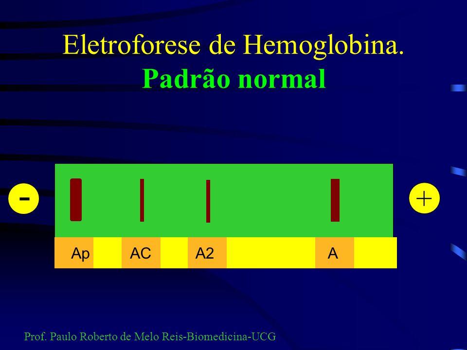 Eletroforese de Hemoglobina. Padrão normal