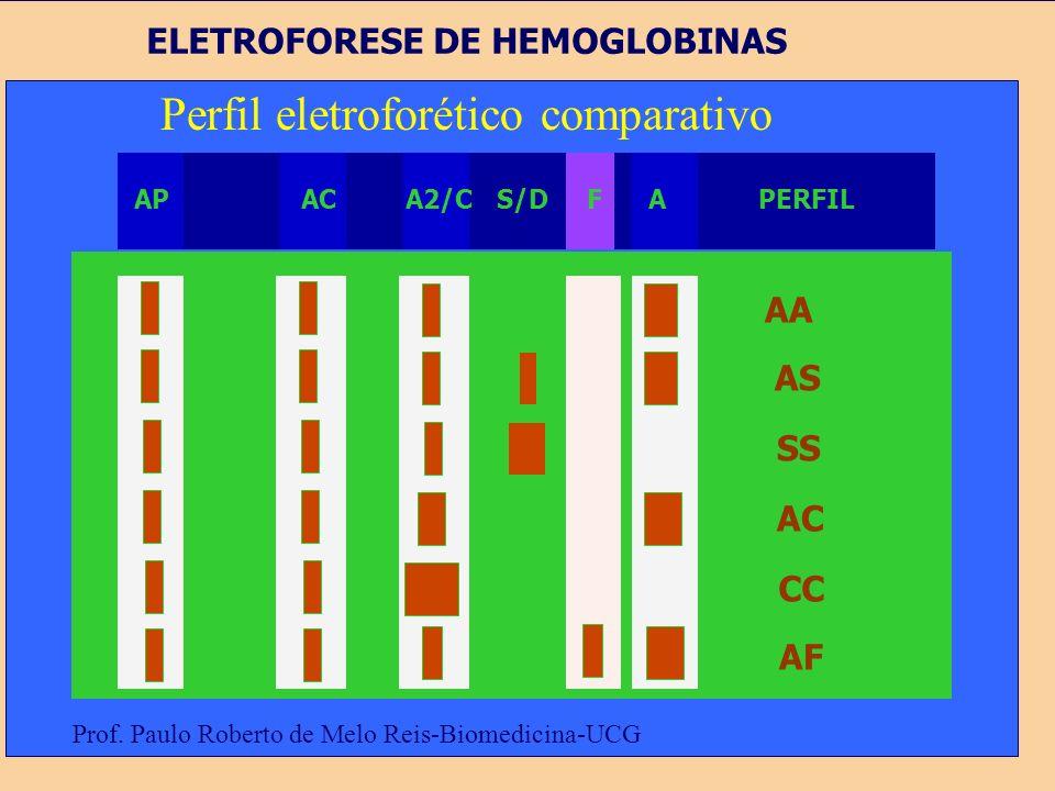 Perfil eletroforético comparativo