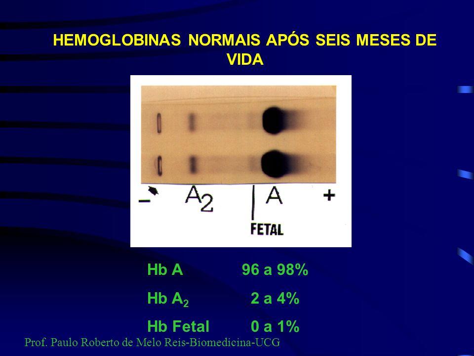 HEMOGLOBINAS NORMAIS APÓS SEIS MESES DE VIDA