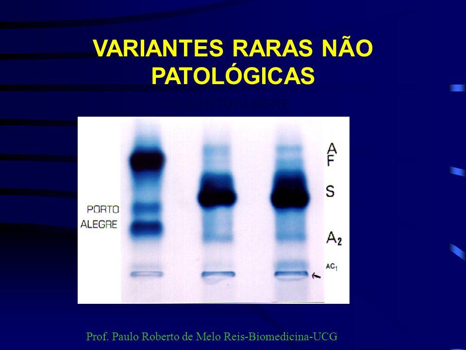 VARIANTES RARAS NÃO PATOLÓGICAS