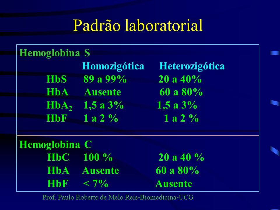 Padrão laboratorial Hemoglobina S Homozigótica Heterozigótica