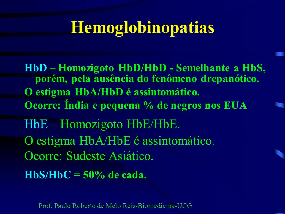 Hemoglobinopatias HbE – Homozigoto HbE/HbE.