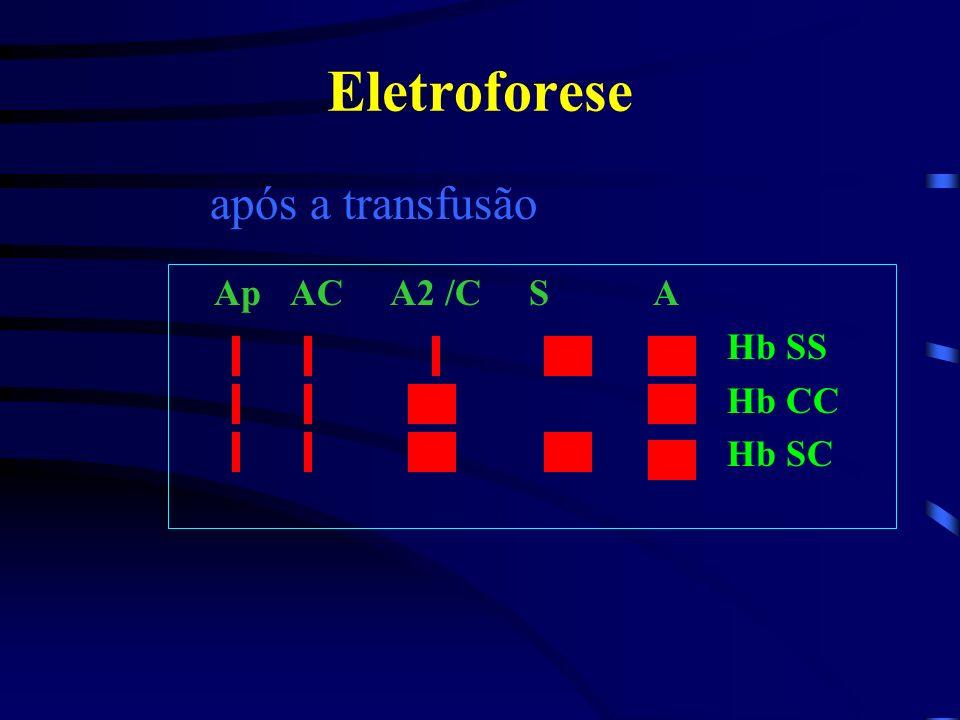 Eletroforese após a transfusão Ap AC A2 /C S A Hb SS Hb CC Hb SC