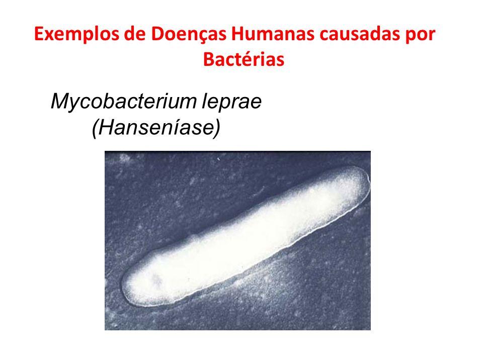 Exemplos de Doenças Humanas causadas por Bactérias