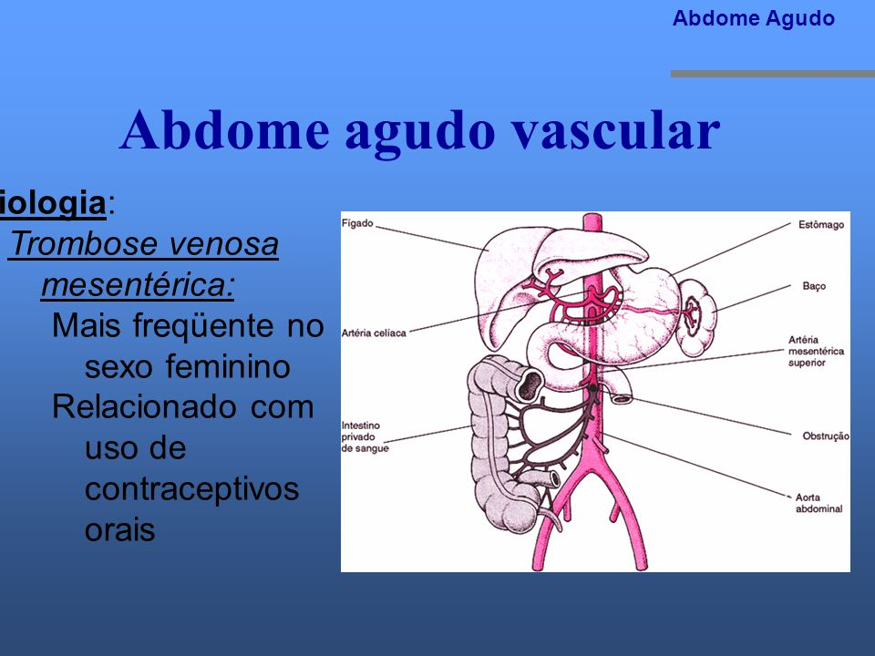 Abdome agudo vascular Etiologia: Trombose venosa mesentérica: