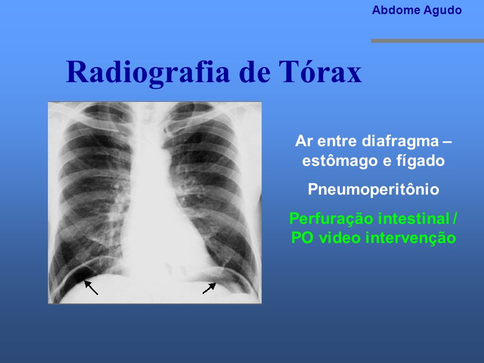 Radiografia de Tórax Ar entre diafragma – estômago e fígado