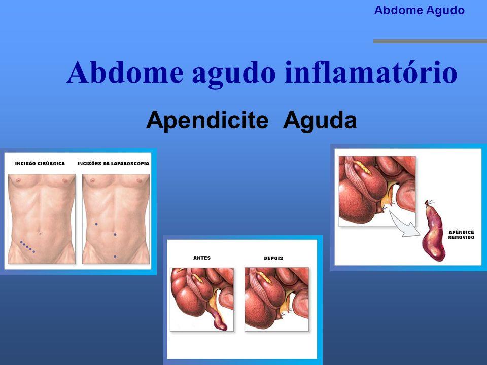 Abdome agudo inflamatório