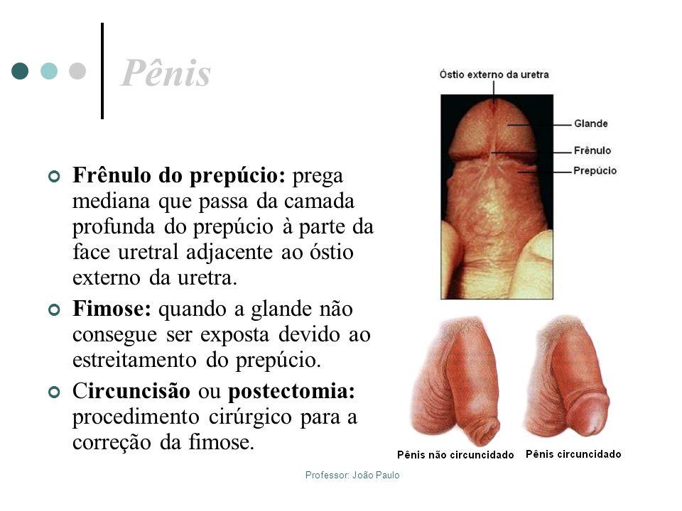 Pênis Frênulo do prepúcio: prega mediana que passa da camada profunda do prepúcio à parte da face uretral adjacente ao óstio externo da uretra.