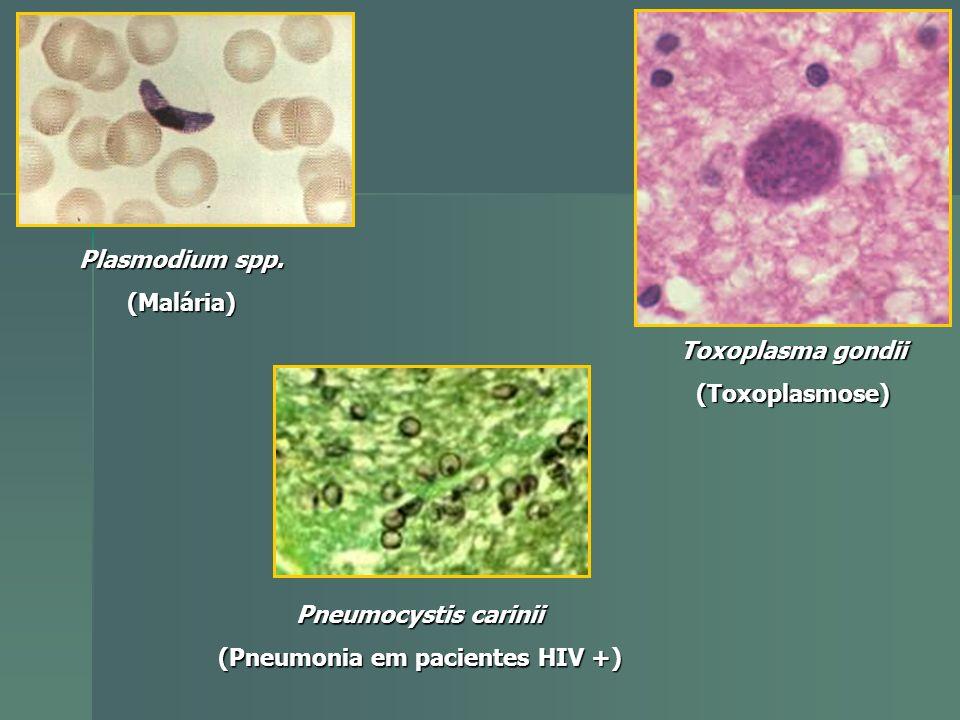 (Pneumonia em pacientes HIV +)