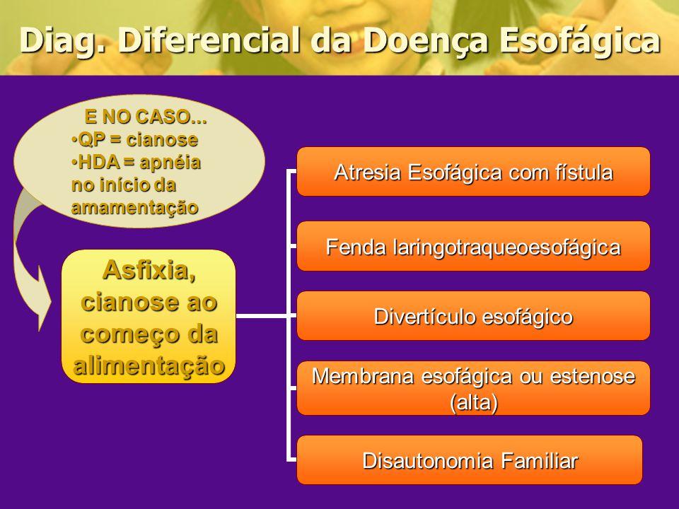 Diag. Diferencial da Doença Esofágica